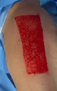 Split Skin Graft Donor Site