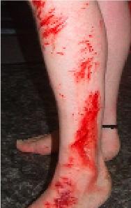 Extensive Skin Abrasion